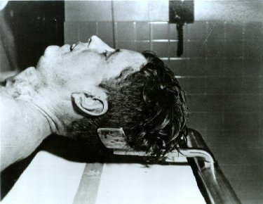 Kennedy lying on the Autopsy table